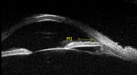 Glaucoma angulo cerrado